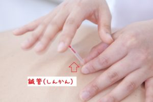 坐骨神経痛でお悩みの方には『鍼』が効果的です