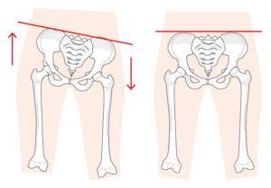 立ち方 坐骨神経痛 骨盤矯正 骨格矯正 しびれ ゆがみ