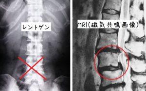 腰椎椎間板ヘルニア MRI レントゲン